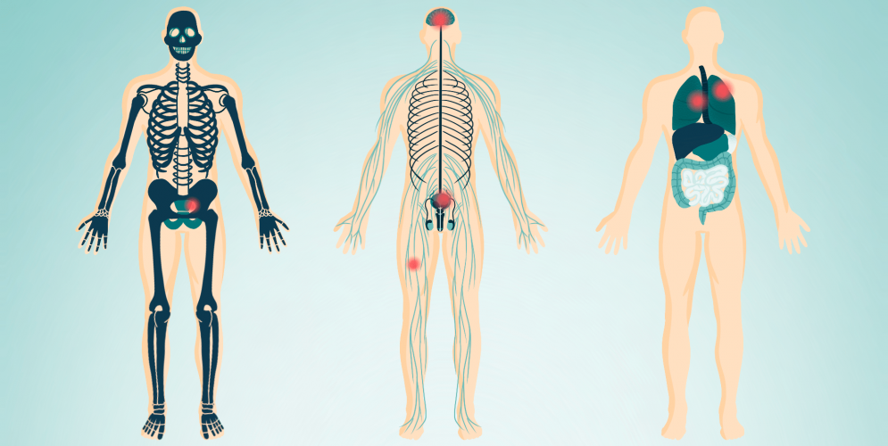 Severe Effects of EMF on the Human Body