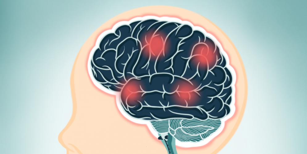 How does EMF Affect the Brain?